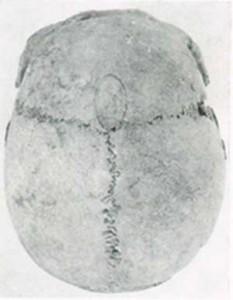 Мужской череп с символичной трепанацией, из захоронения в поселении Занцков.